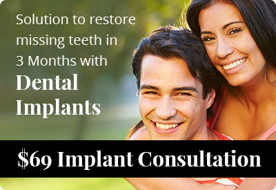 Dental Implant Promo1