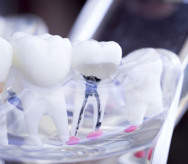 Signs that you need a root canal treatment
