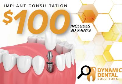 Total Implant Consultation